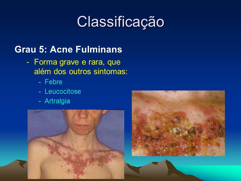 Classificação Grau 5: Acne Fulminans -Forma grave e rara, que além dos outros sintomas: -Febre -Leucocitose -Artralgia