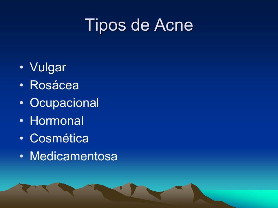 Tipos de Acne Vulgar Rosácea Ocupacional Hormonal Cosmética Medicamentosa