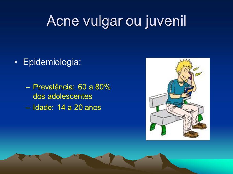 Acne vulgar ou juvenil Epidemiologia: –Prevalência: 60 a 80% dos adolescentes –Idade: 14 a 20 anos