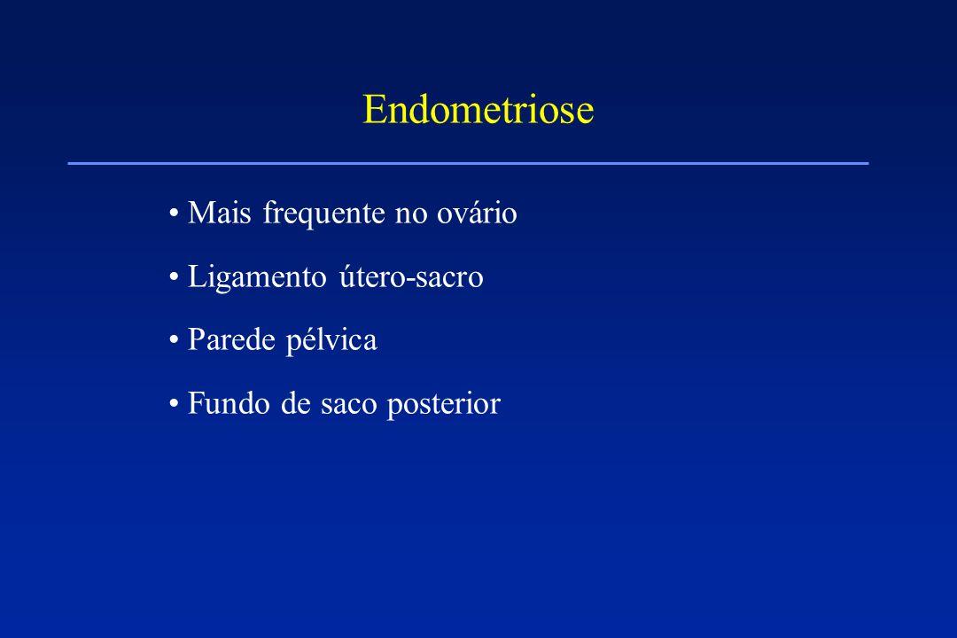 Endometriose Mais frequente no ovário Ligamento útero-sacro Parede pélvica Fundo de saco posterior