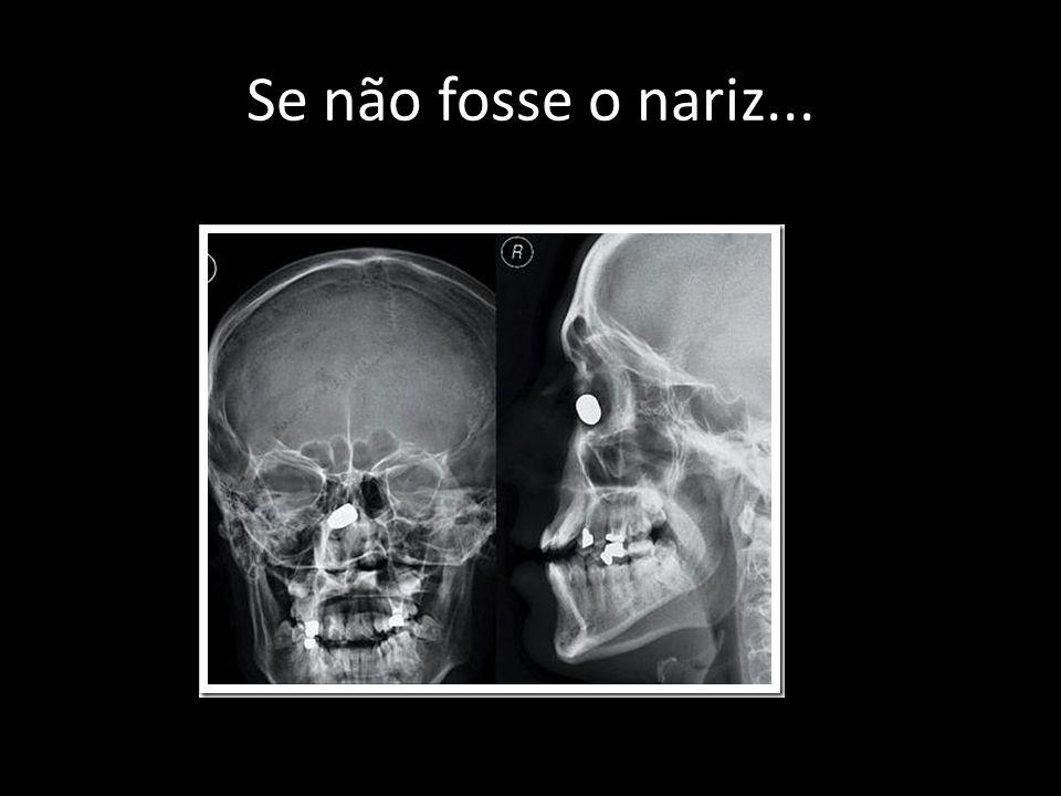 Se não fosse o nariz...