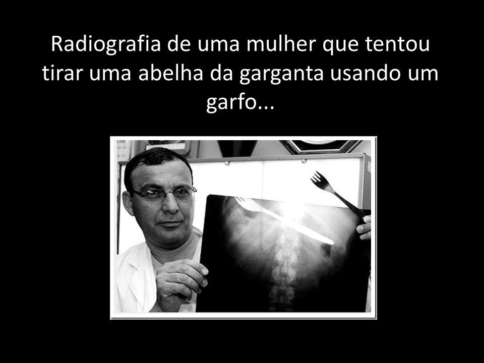 Radiografia de uma mulher que tentou tirar uma abelha da garganta usando um garfo...