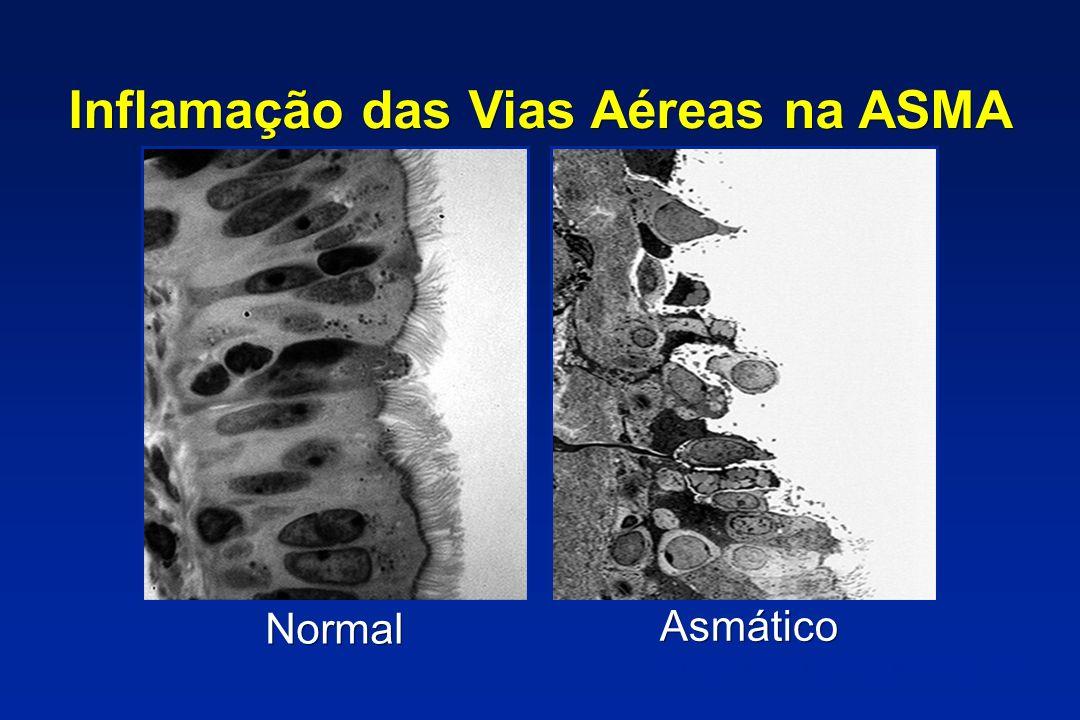 Inflamação das Vias Aéreas na ASMA Asmático Normal P Jeffery, in: Asthma, Academic Press 1998