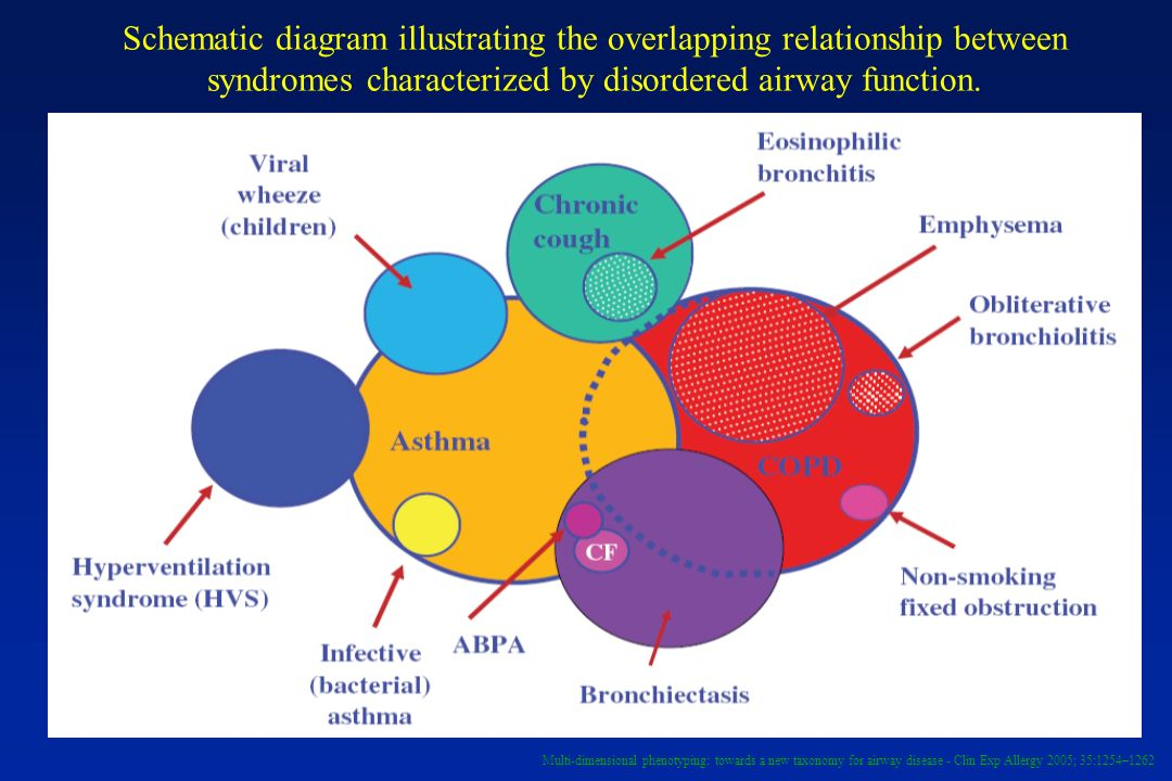Schematic diagram illustrating the overlapping relationship between syndromes characterized by disordered airway function. Multi-dimensional phenotypi