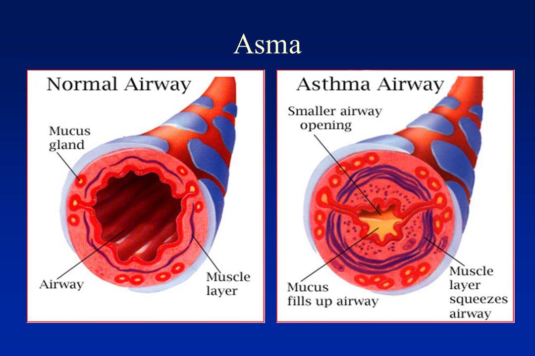 Agonists 2 Adrenérgicos Broncodilatadores mais potentes – Aliviam o broncoespasmo Duas classes: Curta duração: Fenoterol, salbutamol, terbutalina Longa duração: Formoterol, salmeterol Mecanismo: –Ativam receptores 2 no músculo liso pulmonar –Promovem broncodilatação (aliviam o broncoespasmo) –Efeitos antiinflamatórios discretos