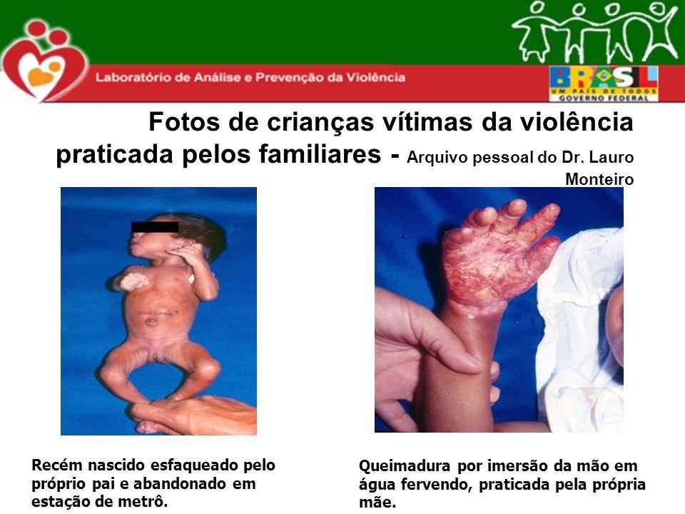 Fotos de crianças vítimas da violência praticada pelos familiares - Arquivo pessoal do Dr. Lauro Monteiro Recém nascido esfaqueado pelo próprio pai e