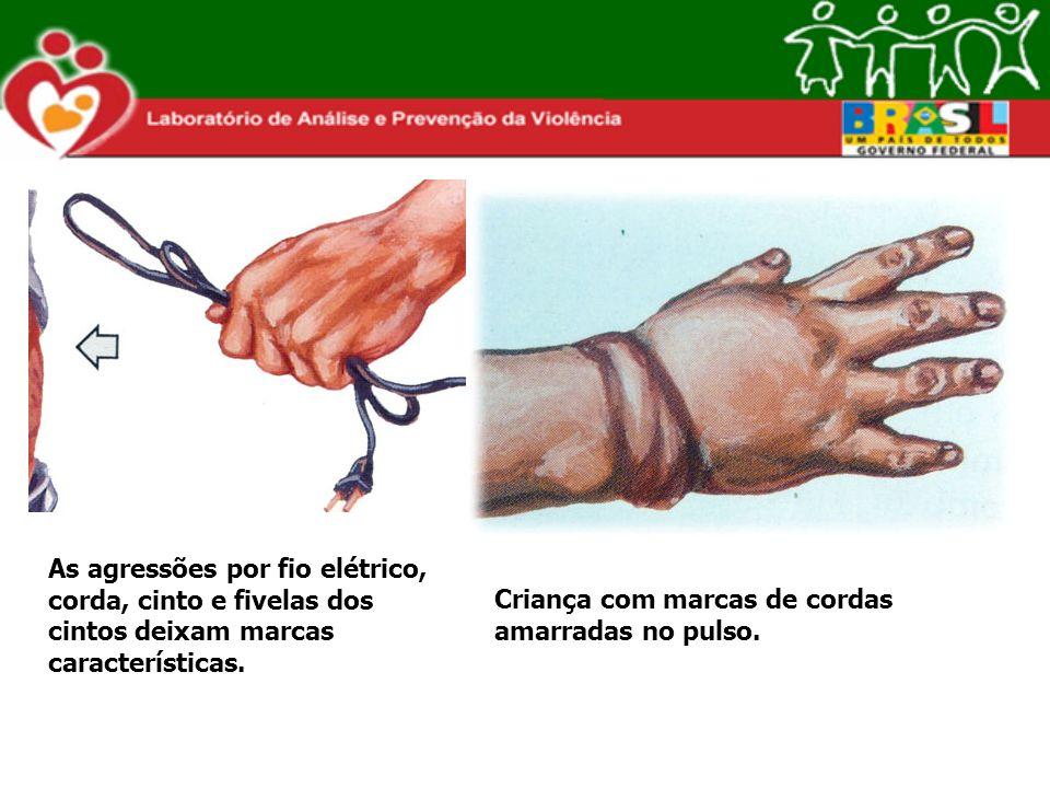 As agressões por fio elétrico, corda, cinto e fivelas dos cintos deixam marcas características. Criança com marcas de cordas amarradas no pulso.