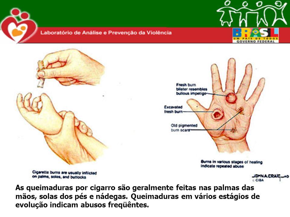 As queimaduras por cigarro são geralmente feitas nas palmas das mãos, solas dos pés e nádegas. Queimaduras em vários estágios de evolução indicam abus