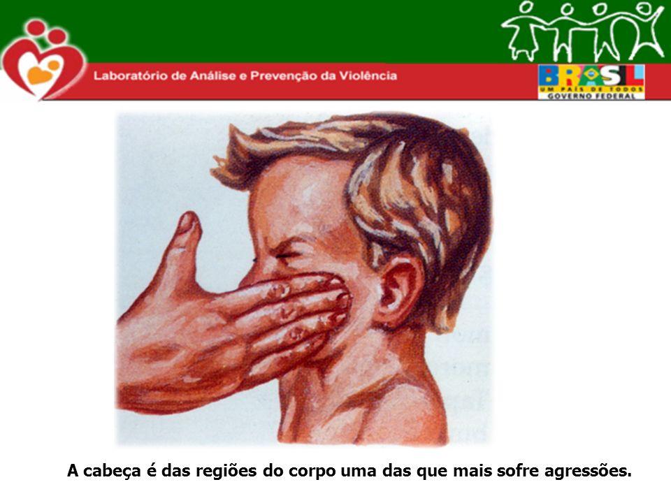 A cabeça é das regiões do corpo uma das que mais sofre agressões.