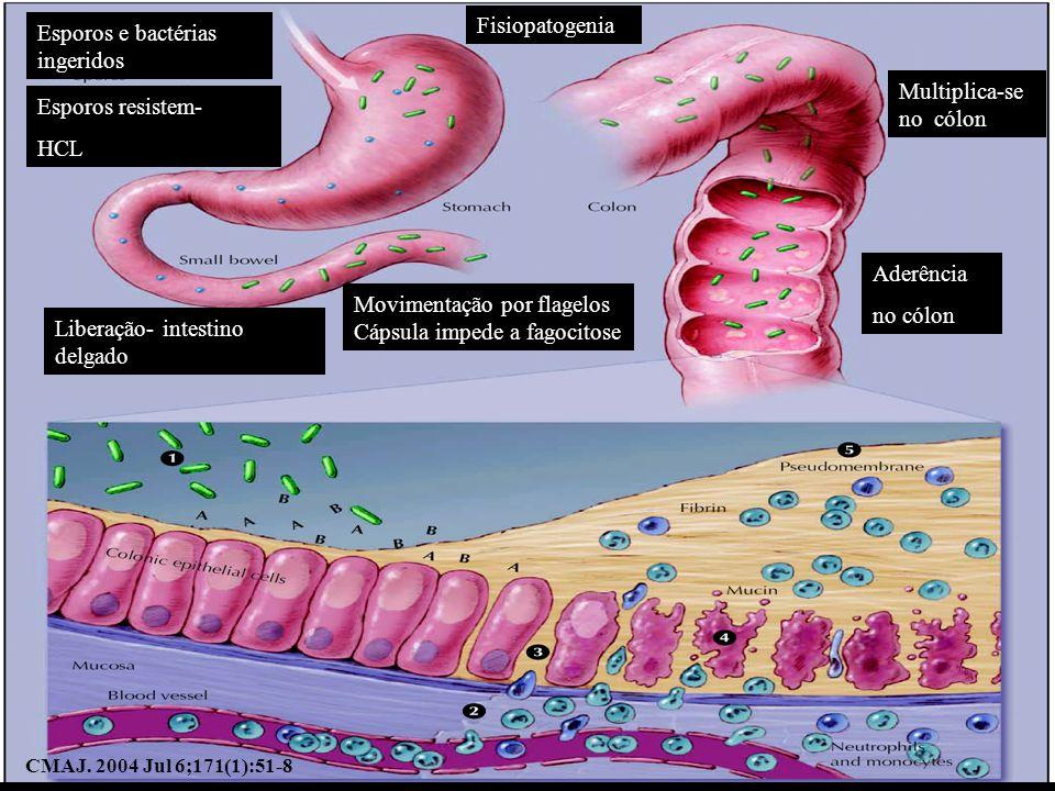 Esporos e bactérias ingeridos Esporos resistem- HCL Liberação- intestino delgado Movimentação por flagelos Cápsula impede a fagocitose Multiplica-se n