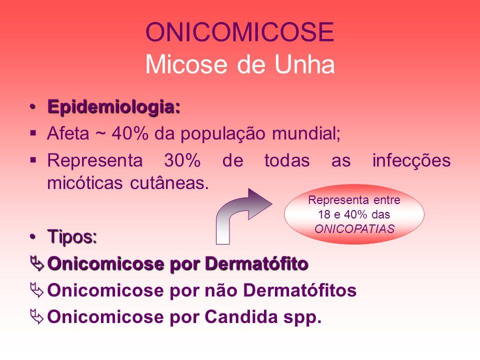 ONICOMICOSE Micose de Unha Epidemiologia:Epidemiologia: Afeta ~ 40% da população mundial; Representa 30% de todas as infecções micóticas cutâneas. Tip