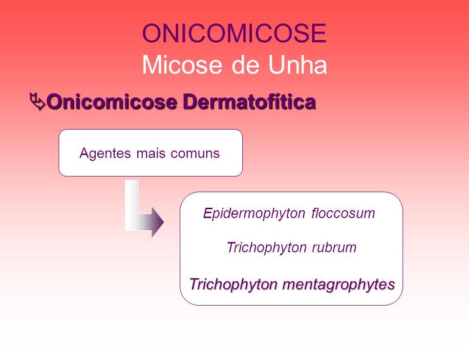 ONICOMICOSE Micose de Unha Trichophyton mentagrophytes Pode ocasionar outras micoses; Colônias de crescimento rápido; Apresenta órgão perfurados de pêlos; Pode ser antropofílico ou geofílico.