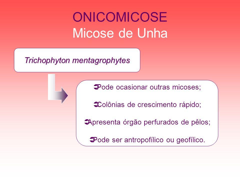 ONICOMICOSE Micose de Unha Trichophyton mentagrophytes Pode ocasionar outras micoses; Colônias de crescimento rápido; Apresenta órgão perfurados de pê