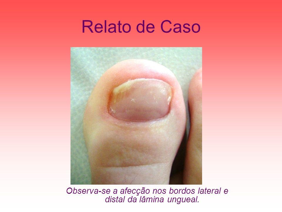 Relato de Caso Observa-se a afecção nos bordos lateral e distal da lâmina ungueal.