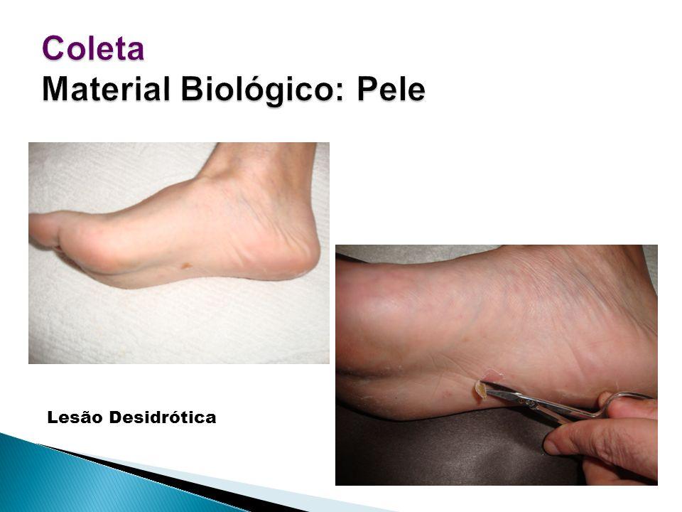 Lesão Desidrótica