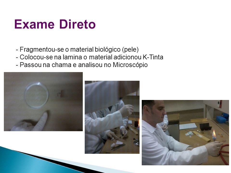 - Fragmentou-se o material biológico (pele) - Colocou-se na lamina o material adicionou K-Tinta - Passou na chama e analisou no Microscópio