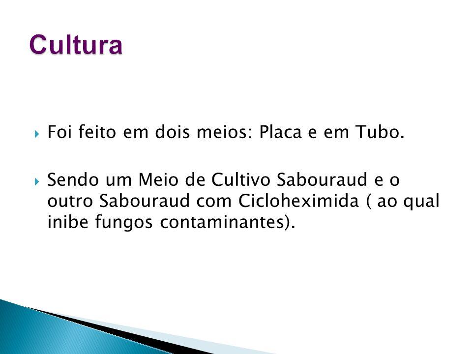 Foi feito em dois meios: Placa e em Tubo. Sendo um Meio de Cultivo Sabouraud e o outro Sabouraud com Cicloheximida ( ao qual inibe fungos contaminante
