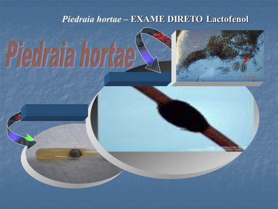 ascosporos EXAME DIRETO Lactofenol Piedraia hortae – EXAME DIRETO Lactofenol cultura