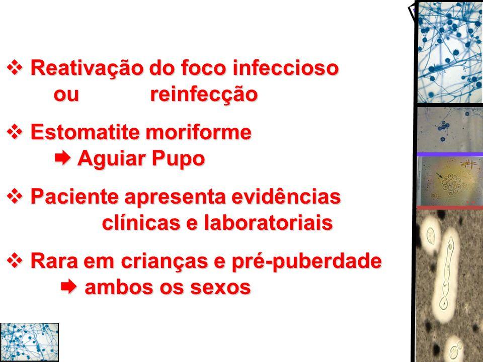 Reativação do foco infeccioso ou reinfecção Reativação do foco infeccioso ou reinfecção Estomatite moriforme Aguiar Pupo Estomatite moriforme Aguiar P