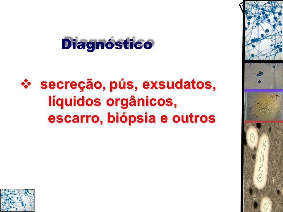 Diagnóstico secreção, pús, exsudatos, líquidos orgânicos, escarro, biópsia e outros secreção, pús, exsudatos, líquidos orgânicos, escarro, biópsia e o