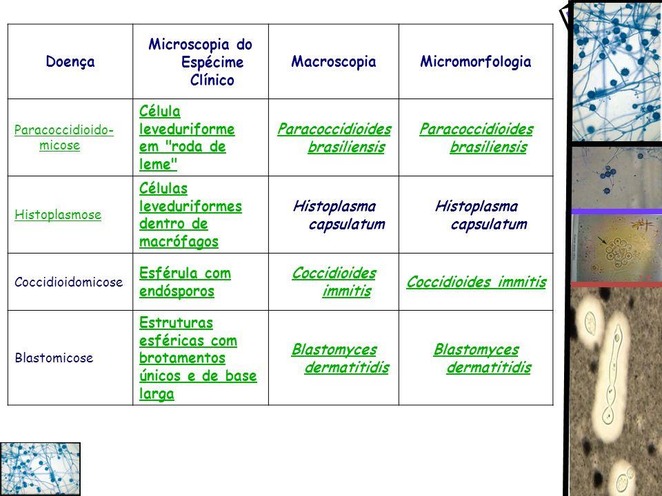 Doença Microscopia do Espécime Clínico MacroscopiaMicromorfologia Paracoccidioido- micose Célula leveduriforme em