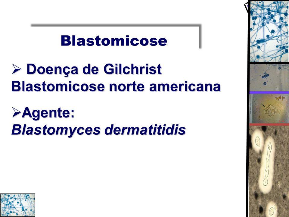 Blastomicose Doença de Gilchrist Blastomicose norte americana Doença de Gilchrist Blastomicose norte americana Agente: Blastomyces dermatitidis Agente