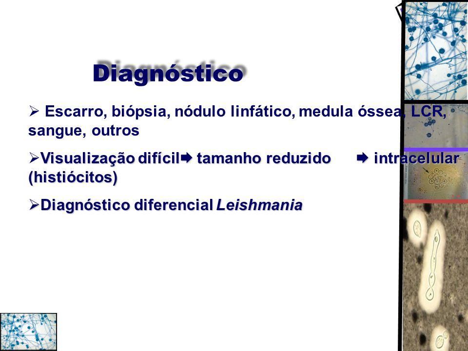 Diagnóstico Escarro, biópsia, nódulo linfático, medula óssea, LCR, sangue, outros Visualização difícil tamanho reduzido intracelular (histiócitos) Dia