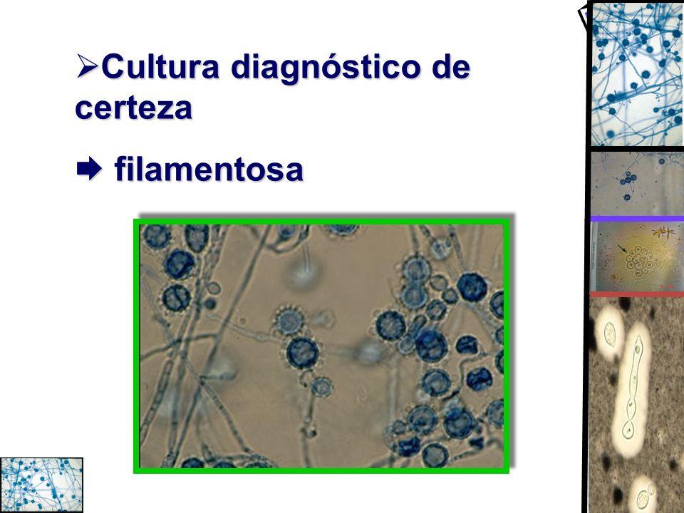 Cultura diagnóstico de certeza Cultura diagnóstico de certeza filamentosa filamentosa