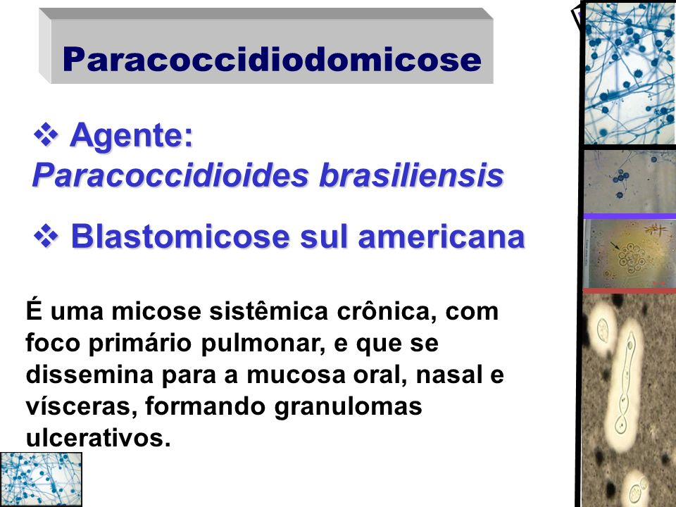Diagnóstico diferencial tuberculose, histoplasmose, neoplasia Pulmonar tuberculose, histoplasmose, neoplasia cromomicose, esporotricose, tuberculose Cutânea cromomicose, esporotricose, tuberculose Óssea mieloma, coccidioidomicose Óssea mieloma, coccidioidomicose