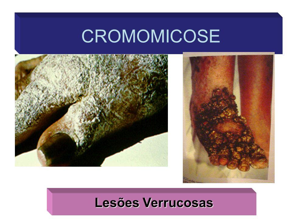 Lesões Verrucosas CROMOMICOSE