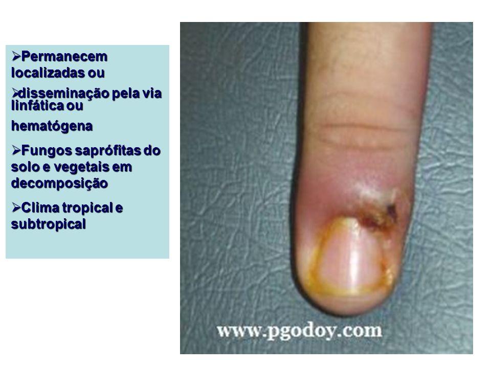 Tratamento Cirúrgico difícil acesso da droga Cirúrgico difícil acesso da droga Cirúrgico + excerese total da lesão + antifúngico Cirúrgico + excerese total da lesão + antifúngico