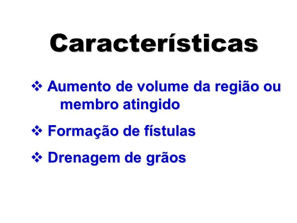 v Aumento de volume da região ou membro atingido v Formação de fístulas v Drenagem de grãos Características Características