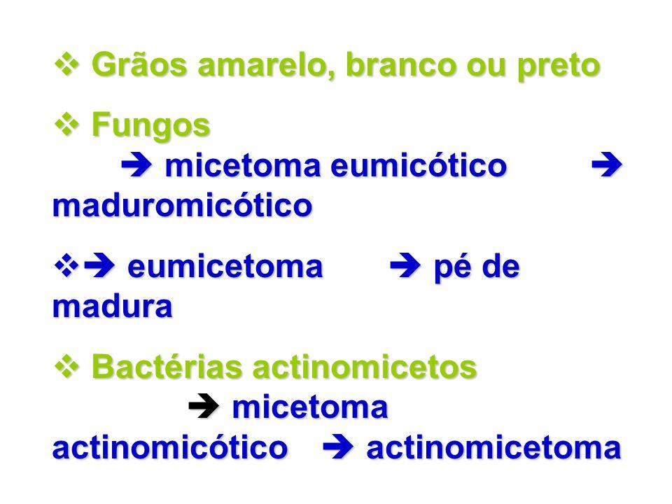 Grãos amarelo, branco ou preto Grãos amarelo, branco ou preto Fungos micetoma eumicótico maduromicótico Fungos micetoma eumicótico maduromicótico eumi