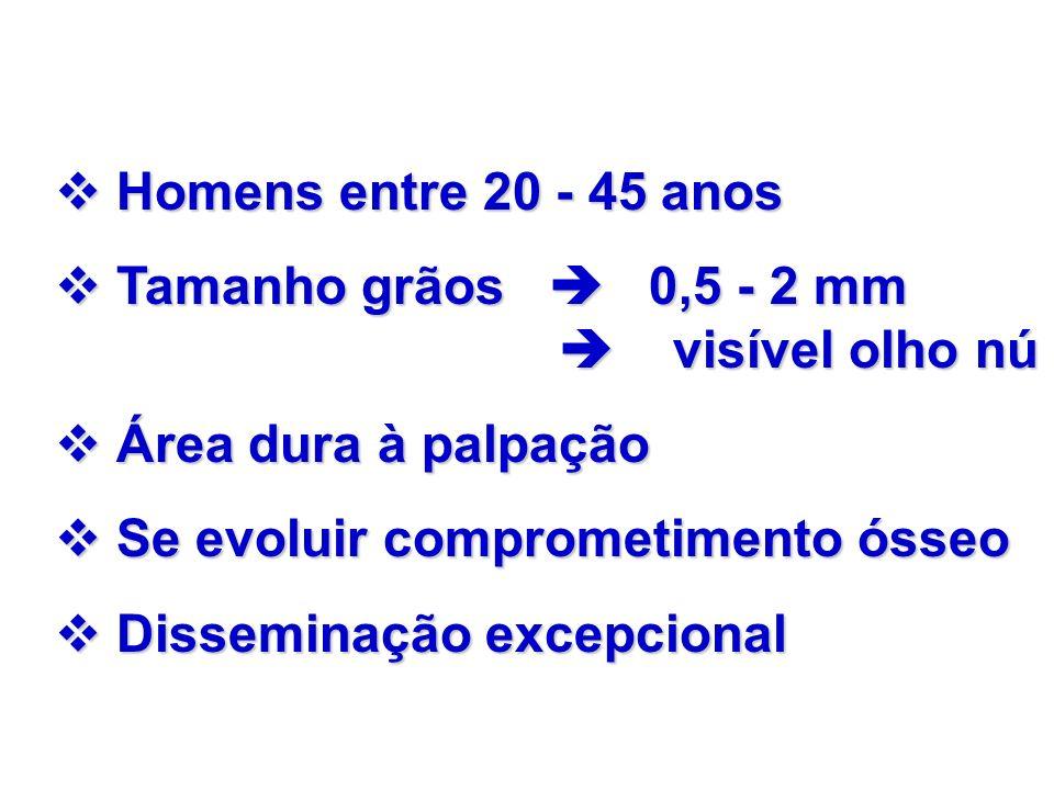 Homens entre 20 - 45 anos Homens entre 20 - 45 anos Tamanho grãos 0,5 - 2 mm visível olho nú Tamanho grãos 0,5 - 2 mm visível olho nú Área dura à palp
