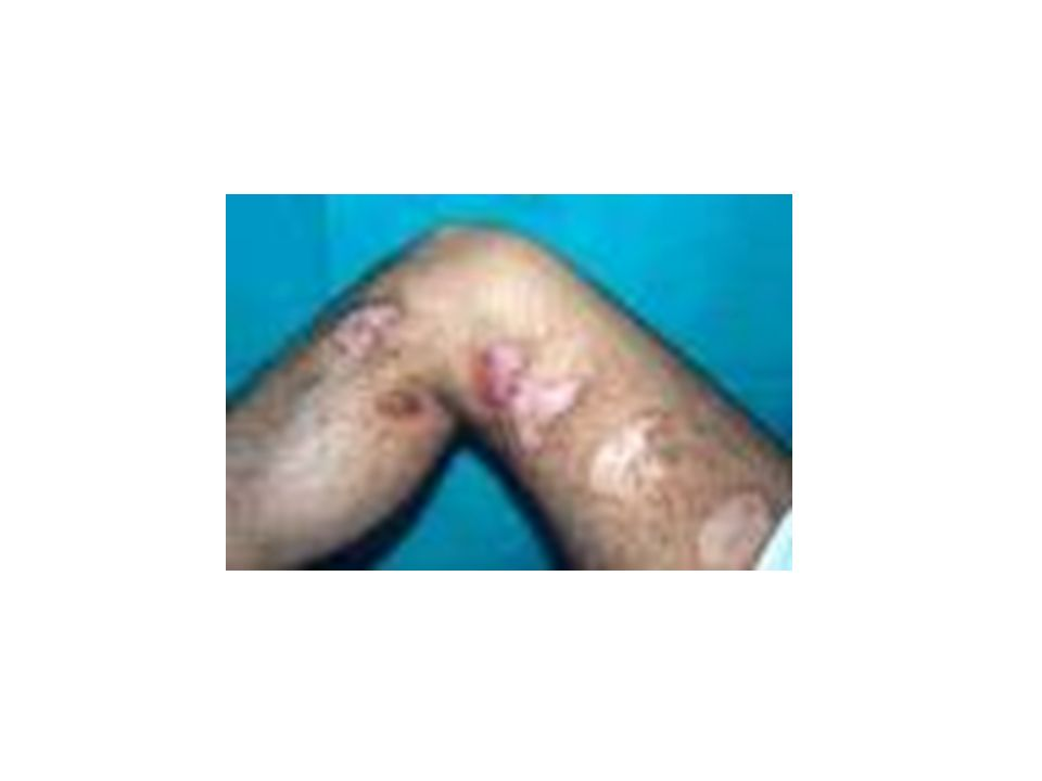Actinomiceto endógeno Cavidade oral mucosa intestinal e vaginal toracopulmonar e abdominal Cavidade oral mucosa intestinal e vaginal toracopulmonar e abdominal Agente mais frequente: Actinomyces sp Agente mais frequente: Actinomyces sp