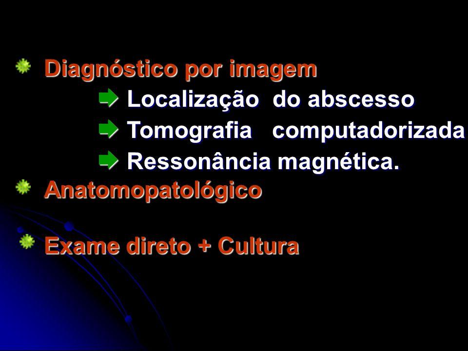 Diagnóstico por imagem Localização do abscesso Tomografia computadorizada Ressonância magnética. Localização do abscesso Tomografia computadorizada Re