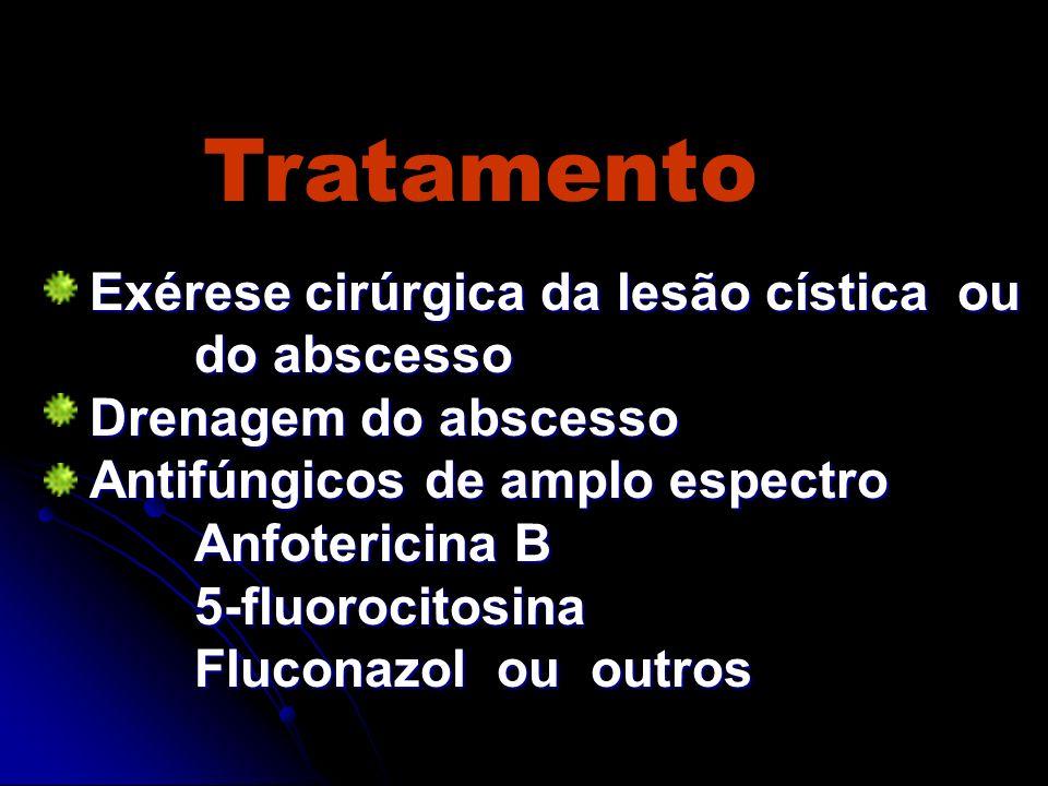 Tratamento Exérese cirúrgica da lesão cística ou do abscesso Drenagem do abscesso Antifúngicos de amplo espectro Anfotericina B 5-fluorocitosina Fluco