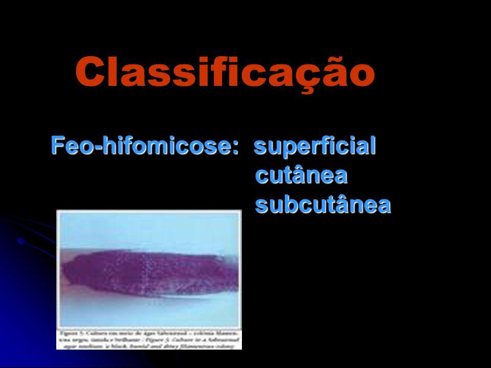 Tratamento Exérese cirúrgica da lesão cística ou do abscesso Drenagem do abscesso Antifúngicos de amplo espectro Anfotericina B 5-fluorocitosina Fluconazol ou outros