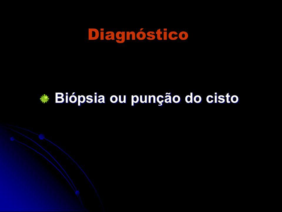 Diagnóstico Biópsia ou punção do cisto