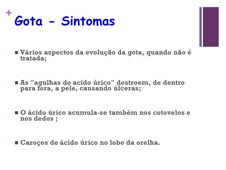 + Gota - Sintomas Vários aspectos da evolução da gota, quando não é tratada; As