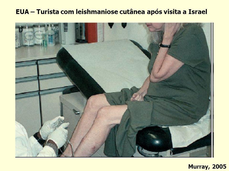 EUA – Turista com leishmaniose cutânea após visita a Israel Murray, 2005
