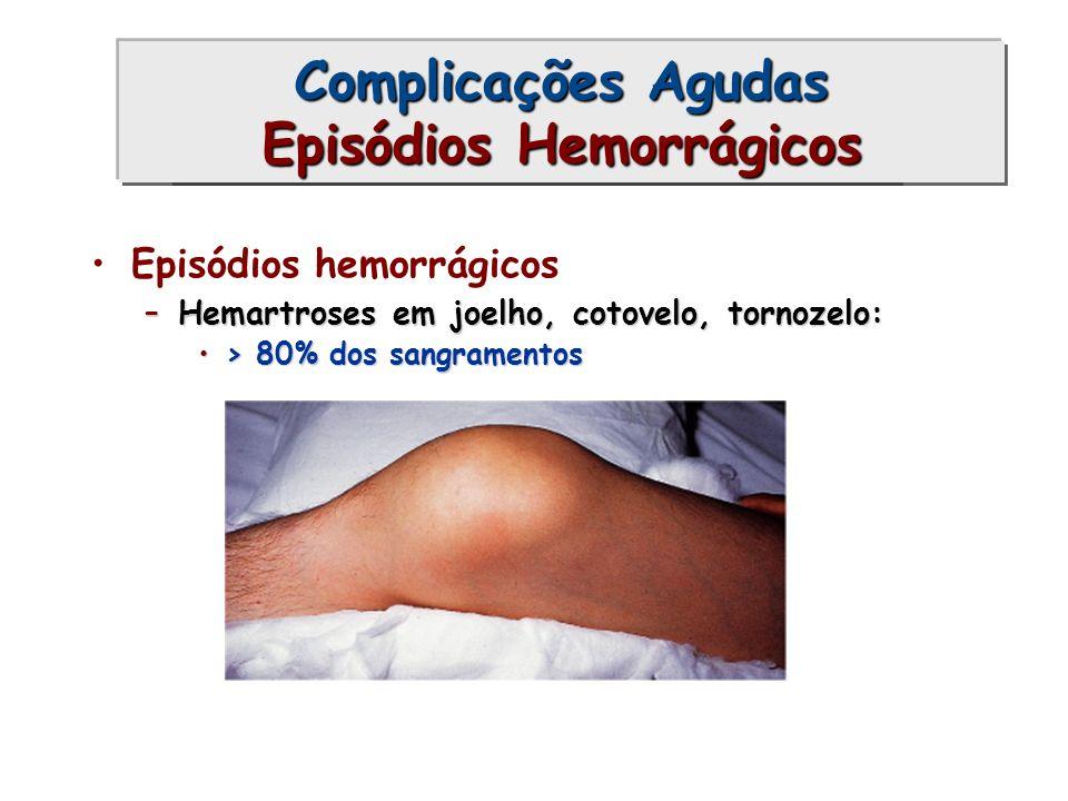 Episódios hemorrágicos –Hemartroses em joelho, cotovelo, tornozelo: > 80% dos sangramentos> 80% dos sangramentos Complicações Agudas (1) Complicações