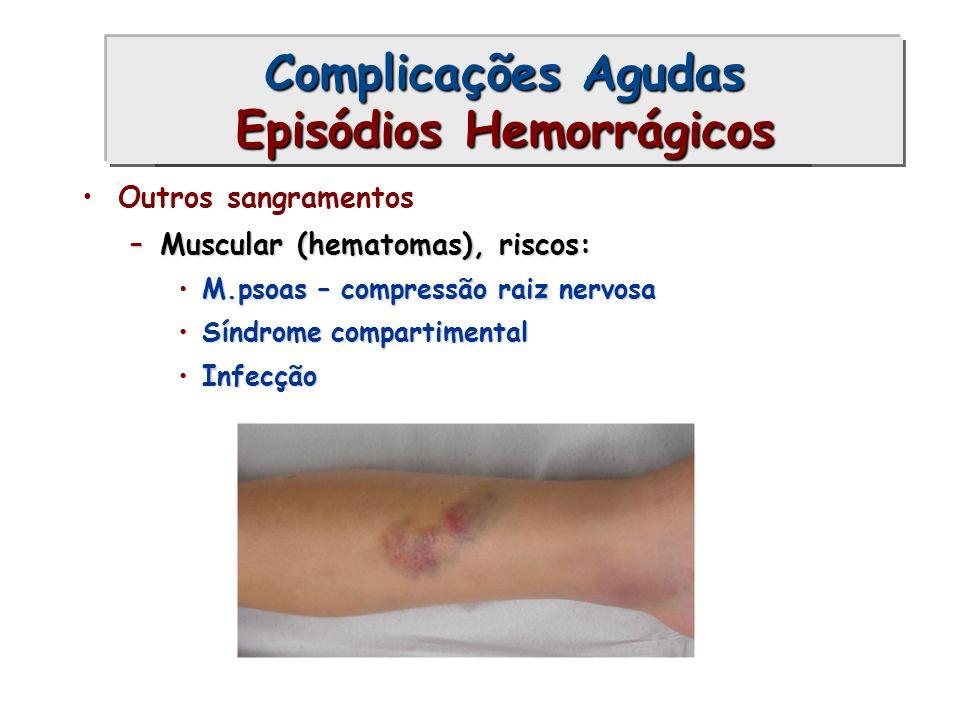 Outros sangramentos –Muscular (hematomas), riscos: M.psoas – compressão raiz nervosaM.psoas – compressão raiz nervosa Síndrome compartimentalSíndrome