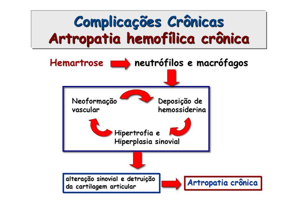 Hemartroseneutrófilos e macrófagos Neoformaçãovascular Deposição de hemossiderina Hipertrofia e Hiperplasia sinovial alteração sinovial e detruição da