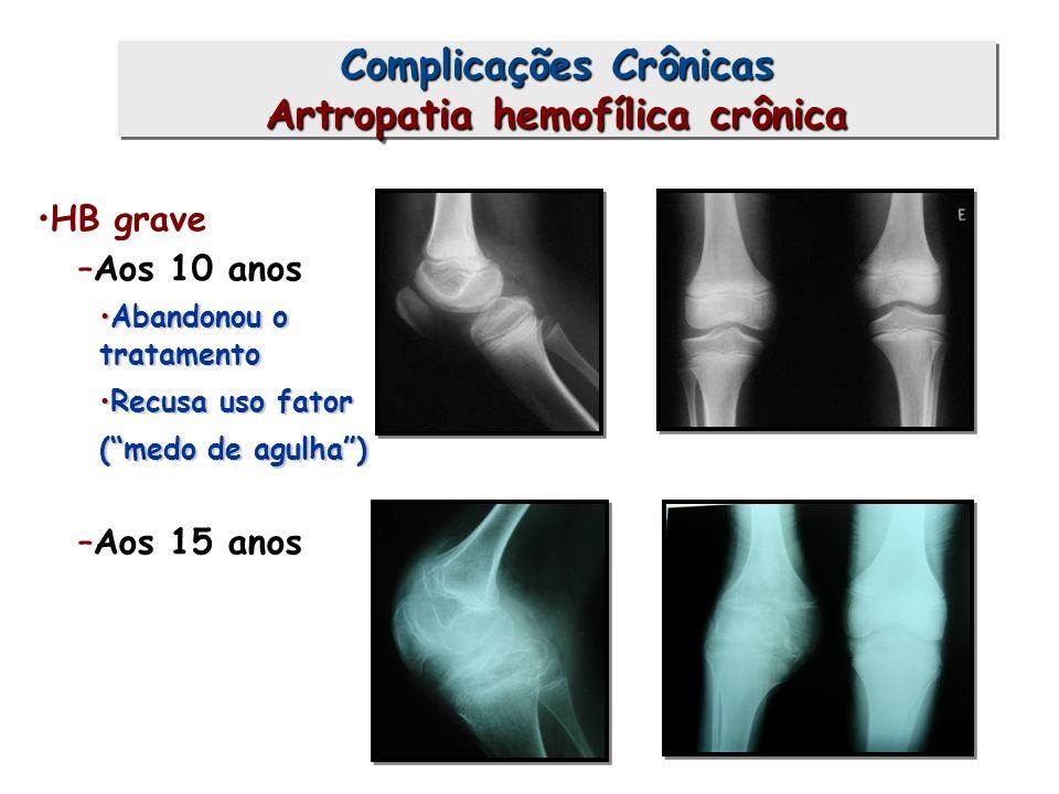 Complicações Crônicas Artropatia hemofílica crônica HB grave –Aos 10 anos Abandonou o tratamentoAbandonou o tratamento Recusa uso fatorRecusa uso fato