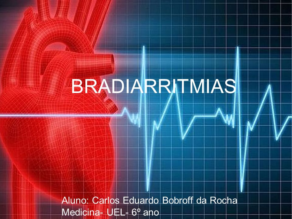 Aluno: Carlos Eduardo Bobroff da Rocha Medicina- UEL- 6º ano BRADIARRITMIAS