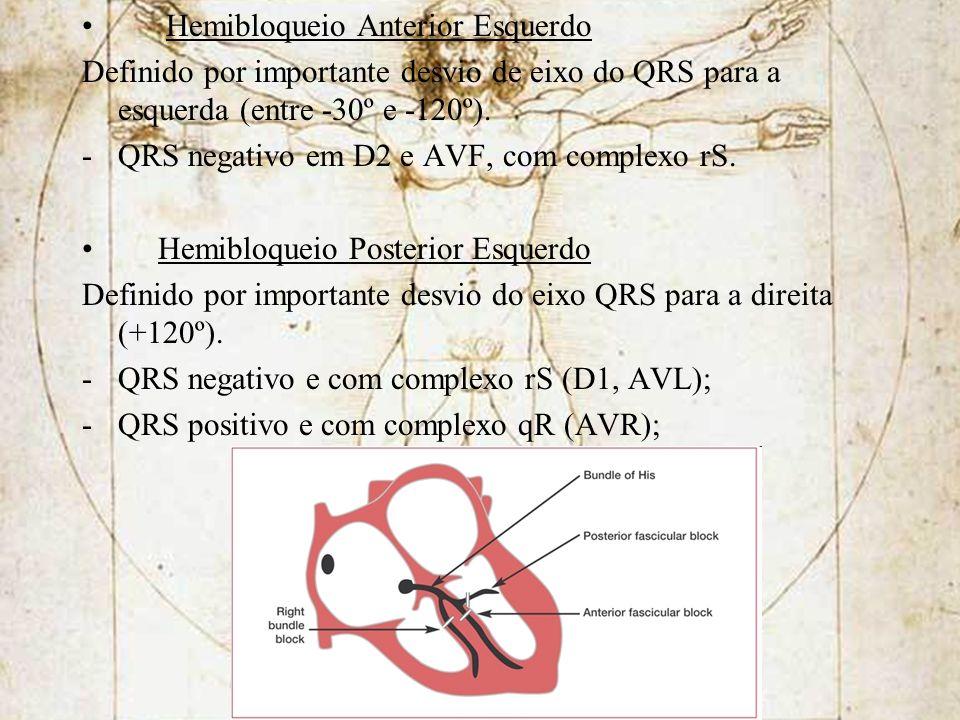 Hemibloqueio Anterior Esquerdo Definido por importante desvio de eixo do QRS para a esquerda (entre -30º e -120º). -QRS negativo em D2 e AVF, com comp
