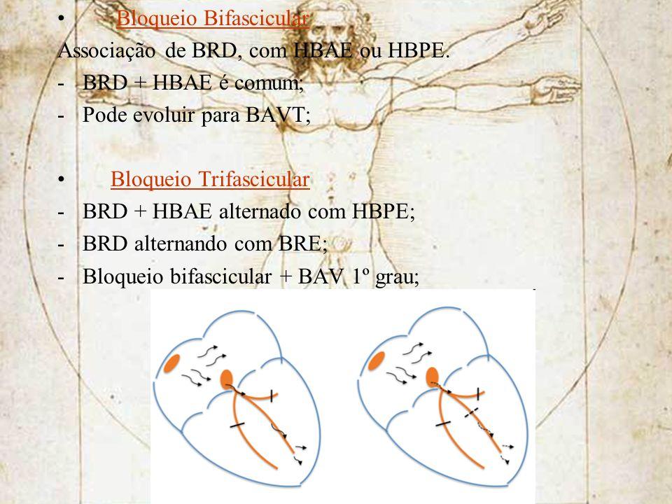 Bloqueio Bifascicular Associação de BRD, com HBAE ou HBPE. -BRD + HBAE é comum; -Pode evoluir para BAVT; Bloqueio Trifascicular -BRD + HBAE alternado