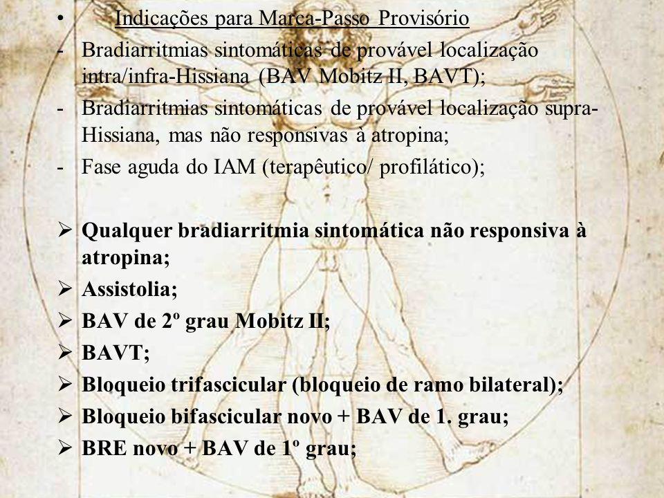 Indicações para Marca-Passo Provisório -Bradiarritmias sintomáticas de provável localização intra/infra-Hissiana (BAV Mobitz II, BAVT); -Bradiarritmia