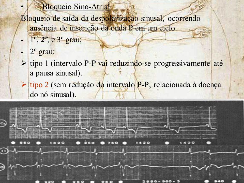 Bloqueio Sino-Atrial Bloqueio de saída da despolarização sinusal, ocorrendo ausência de inscrição da onda P em um ciclo. -1º, 2º, e 3º grau; -2º grau: